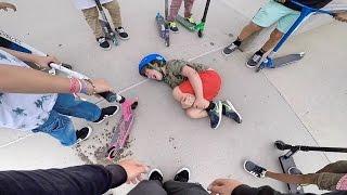 KID BROKE HIS LEG (so sad)   Wezma