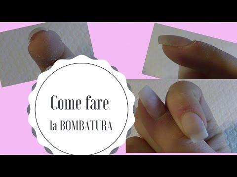 Che guarire un fungo su un dito a mano