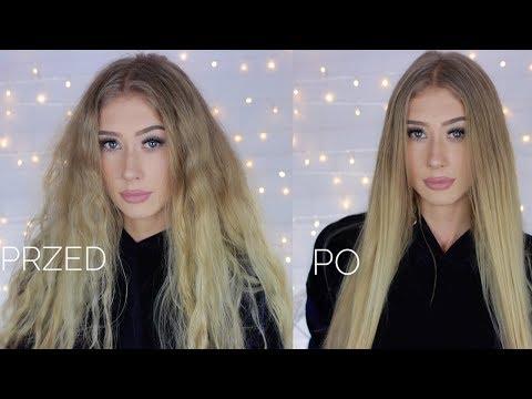 Witaminy na wypadanie włosów u kobiet