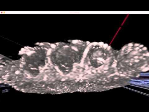 Mal di schiena schiena sotto le costole durante la gravidanza