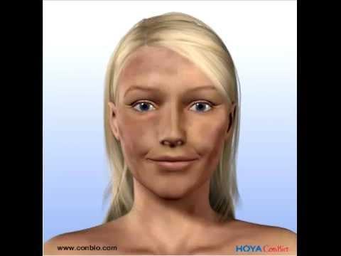 Chantelle Winnie il modello americano con violazione di pigmentazione di pelle di una fotografia