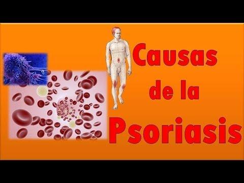 El tratamiento de la psoriasis en el si médico