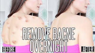How To Get Rid OF BACK ACNE OVERNIGHT !!