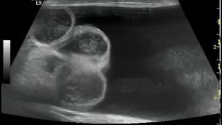 Сочетание паховой грыжи и гидроцеле