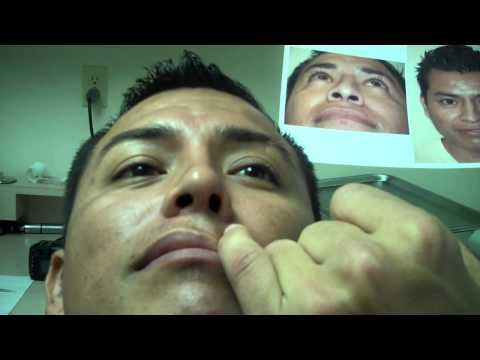 Dr. Jeffrey Epstein – 4 Months Post-Op Rhinoplasty