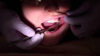 Dental Isolation - Cotton Rolls and Dri - Angles