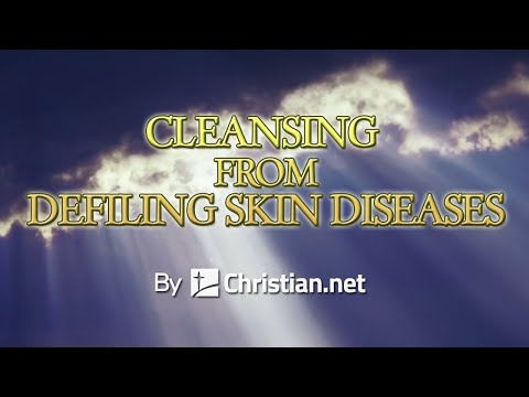 Leviticus 14:1 – 32: Cleansing From Defiling Skin Diseases | Bible Stories
