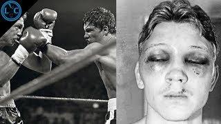 El Boxeador Que Usó Yeso En Sus Puños | Luis Resto vs Billy Collins Jr.