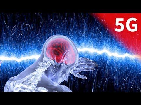 Dringender Hinweis: 5G Netz ist gefährlich für deine Gesundheit!