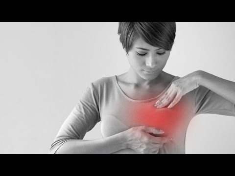 Cancer de colon nccn