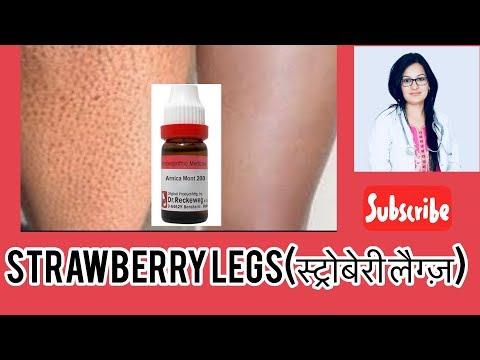 Strawberry Legs best Treatment-स्ट्रोबेरी लैग्ज़ क्या है?by डॉक्टर रुक्मणी