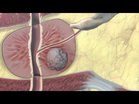 Prostatitis skála