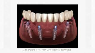 Dentista en Sevilla y Cádiz - En Clínica Dental HELIDENT