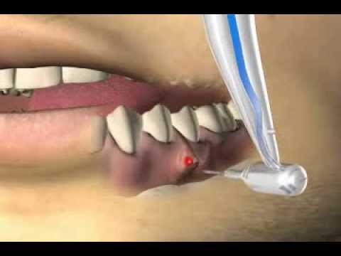 Osteoarthritis des Kniegelenks Antirheumatika
