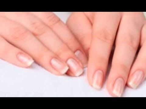 Народные средства при пигментации кожи