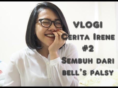 Download VLOGI #2 L Cerita Irene L Sembuh Dari Bell's Palsy HD Mp4 3GP Video and MP3