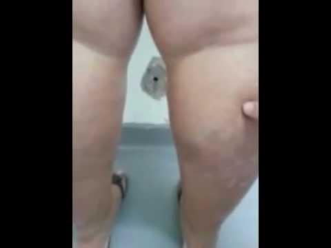Venen auf den Beinen die Behandlung in kasani