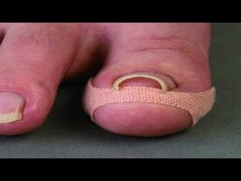 Gribok der Nägel auf den Beinen gestartet die Behandlung die Volksmittel