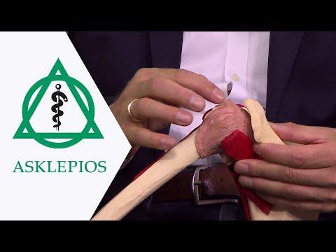 Beschreibung der Vorrichtung und das Kniegelenk