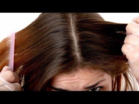 Trattamento di capelli risposte di Tjumen