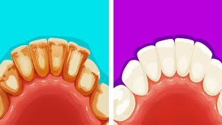 8 Effective Ways to Remove Plaque in Five Minutes