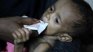 Трагедия детей Йемена
