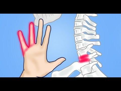Dolor en las articulaciones del hombro con las manos recogió cómo tratar