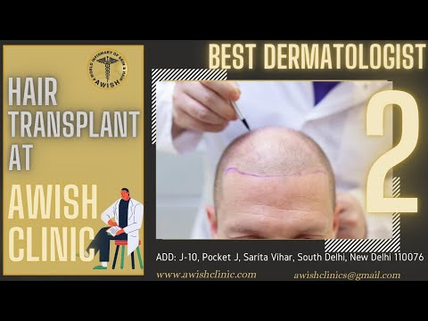 Hair transplant review