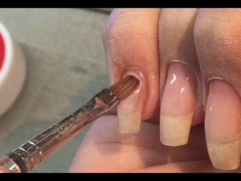 Die Behandlung der Schuppenflechte in kerale