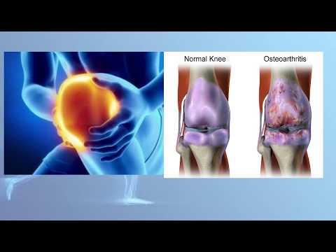 Inflamație purulentă a articulației copitei