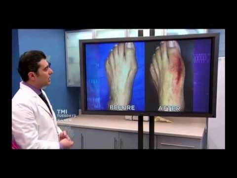 Come guarire la deformazione valgusny di piede