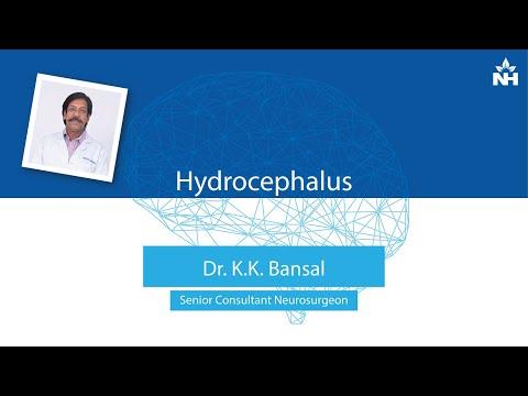 hydrocephalus látás