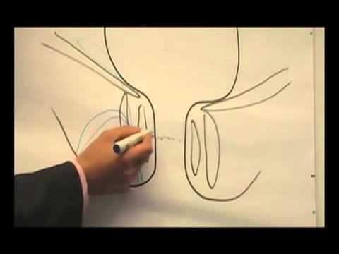 Sexuelle Funktion nach Entfernung der Prostata