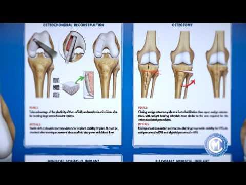 Sintomi di osteoartrite delle articolazioni dellanca