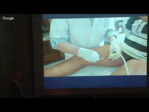Thrombophlebitis ของแขนขาลดลง MRI