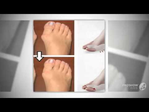 Ортопедическая обувь при вальгусной деформации большого пальца стопы