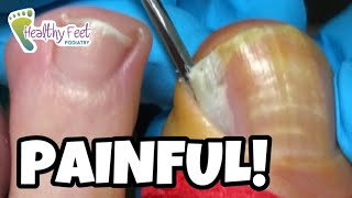 SO PAINFUL AND SO SATISFYING WHEN THE INGROWN TOENAIL IS REMOVED!