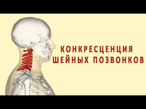 Понос и сильная боль в суставах