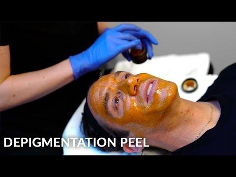 Hyperpigmentation, Discoloration & Melasma