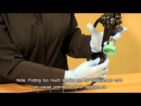 Varicoză pe tratarea picioarelor fără operațiuni