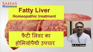 homeopathic best medicines for liver - Free video search