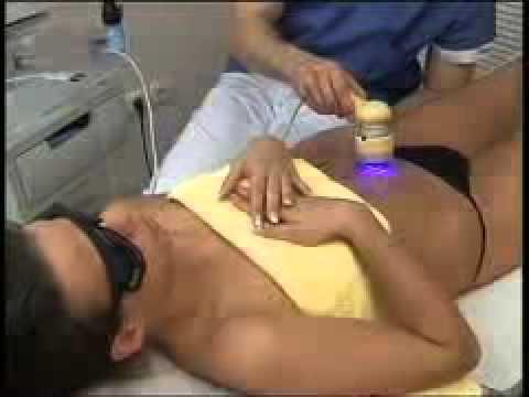stražnja masaža porno