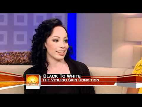 Girl with vitiligo talks about Michael Jackson