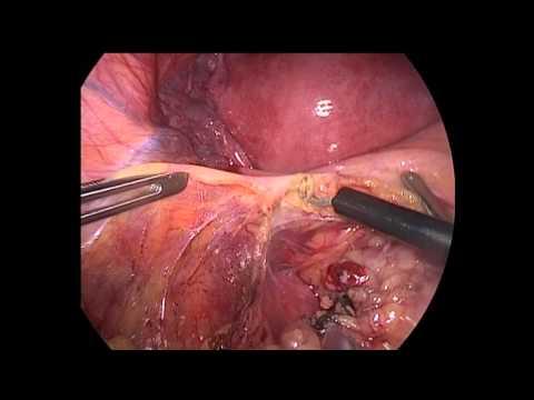 Hyperkeratotic papillomatous lesion