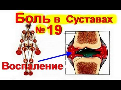 Боль в Суставах ! Лечение суставов № 19. Артрит. Артроз. Как лечить суставы / ed black