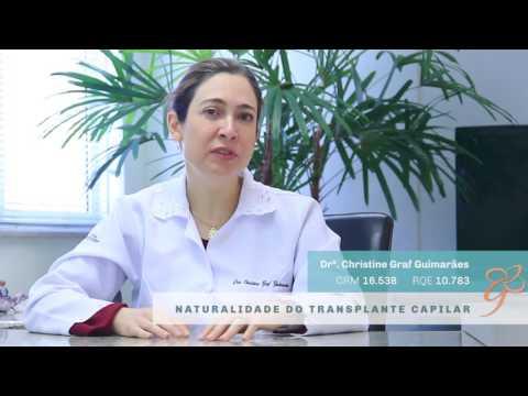 Naturalidade do Transplante Capilar - Vídeos   Clínica GrafGuimarães