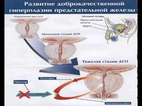 Таблетки от простатита фото
