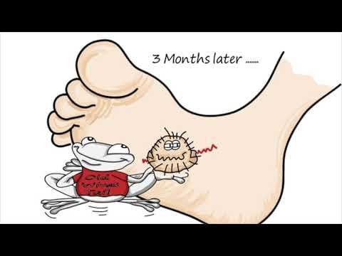 Medicament mai bun pentru viermi pentru viermi