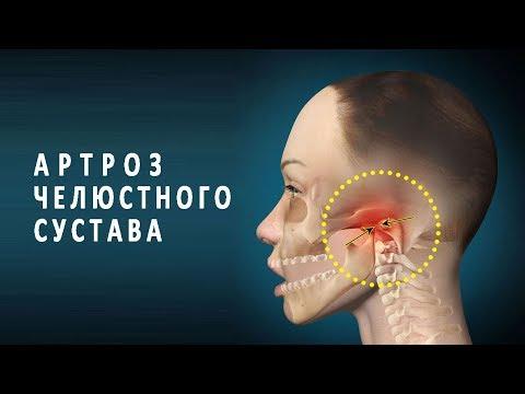 Откидывая голову назад болит шея