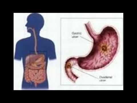Medicina da trombosi di nodo di gemorroidalny esterno